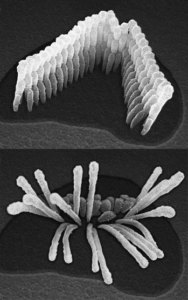 Ear cells comparison pictures