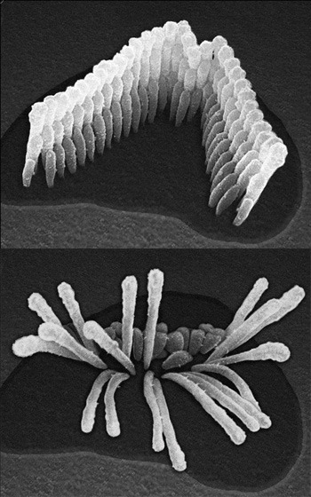 ear_cell_comparison